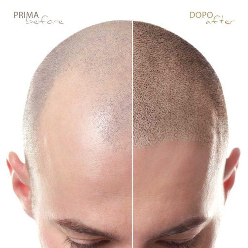 Modulo-effetto-rasato